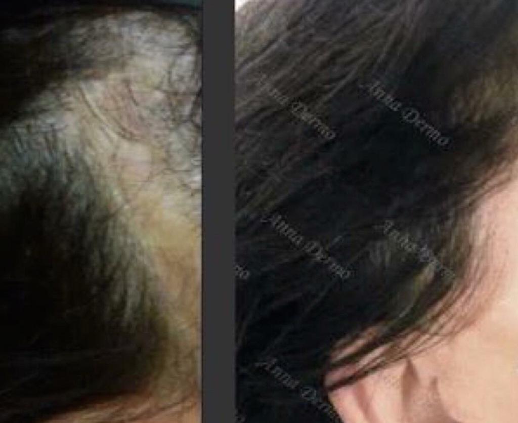 Perte de cheveux suite à tension de coiffure