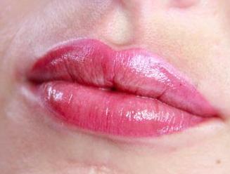 Volum'lips