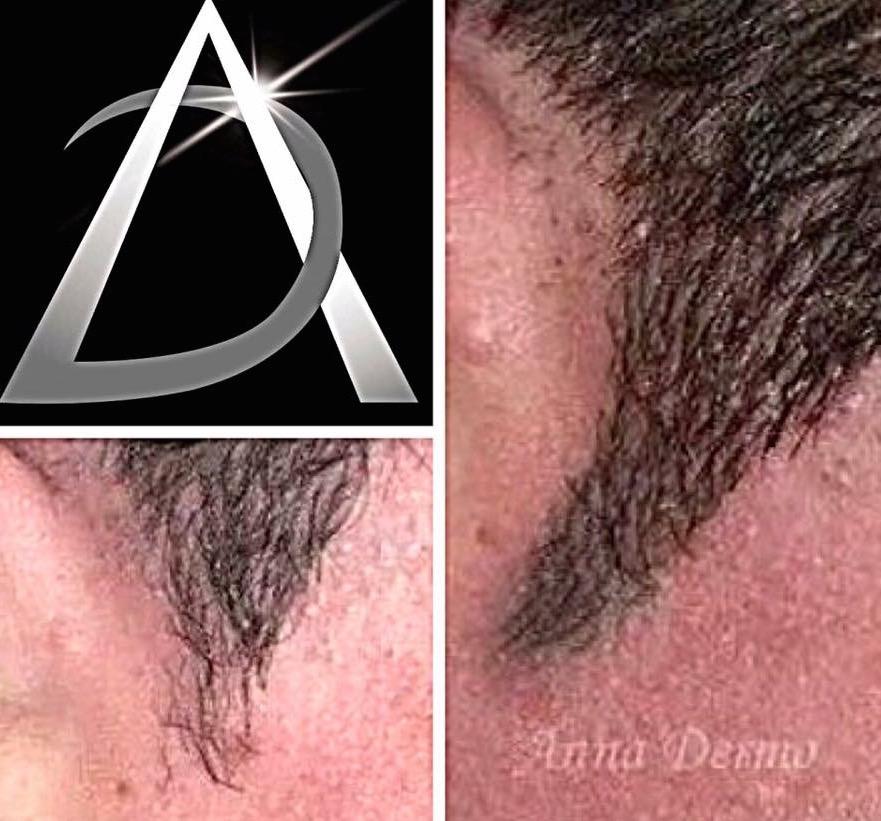Prolongement de pattes cheveux
